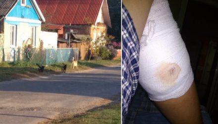 В Чечерске стая бездомных собак покусала 10-летнего мальчика, который шёл в школу