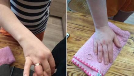 Видеофакт: в Гомеле спасатели помогли снять женщине кольцо с пальца