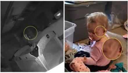 Родители ужаснулись, когда посмотрели видео с камеры и узнали, кто оцарапал дочь