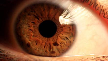У девочки в глазу нашли 10 раковых опухолей благодаря вспышке фотокамеры