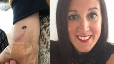 Мама спасла жизнь 8-летнему сыну, заметив на его запястье небольшое покраснение