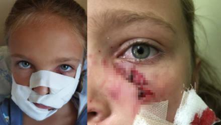 Хозяину таксы, которая «разорвала» лицо ребёнку, дали штраф