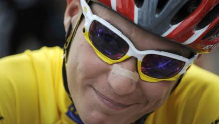 Кадры не для слабонервных: велогонщик шокировал интернет фотографией ноги