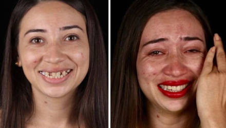 Бразильский дантист дарит беднякам голливудские улыбки: 15 фото до и после