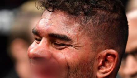 """Звезде UFC во время нокаута """"оторвали"""" часть губы"""
