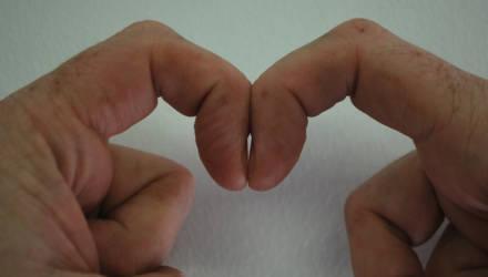 """""""Бриллиантовый зазор"""". Тест, как обнаружить рак лёгких по состоянию ногтей"""