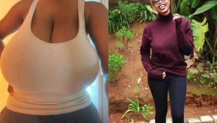 Девушка, каждая грудь которой весила 3 кг, избавилась от этой ноши спустя 8 лет каждодневной боли
