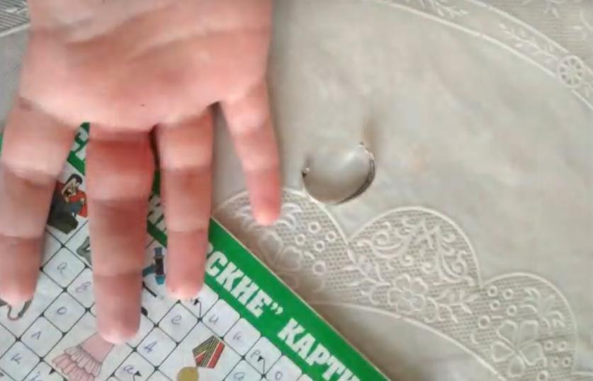 В Гомеле ребёнок не смог снять кольцо с пальца руки: понадобилась помощь спасателей