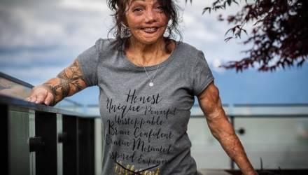 Как сложилась жизнь той девочки, которая в 5 лет получила страшные ожоги и перенесла 200 операций