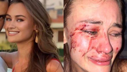 10 фото украинской модели, которая попала во все новости, рассказав, как её избили охранники в Турции