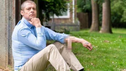Британец, потерявший пенис из-за заражения, четыре года отращивает новый член на руке