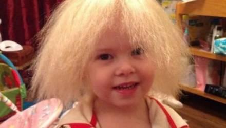 Девять лет без расчёски: как живёт девочка со стекловидными волосами