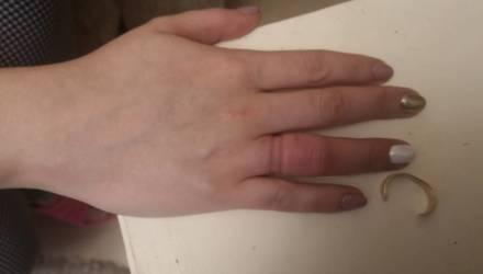 В Гомеле девушка накануне Нового года захотела снять кольцо – и не смогла, пришлось звать спасателей