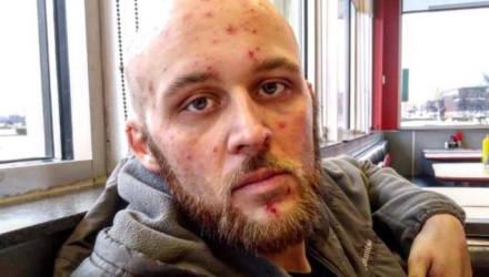 Наркоман отказался от запрещённых веществ три года назад, и вот что стало с его обезображенным лицом