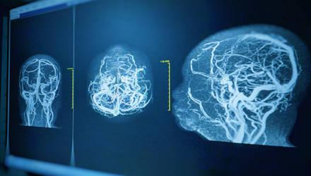 В Гомеле смогут лечить заболевания сосудов, которые ранее считались крайне тяжёлыми для хирургического вмешательства