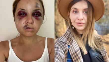 Ведущая из Украины сообщила о смерти монстра, пытавшегося изнасиловать её на глазах у маленького сына