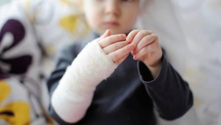 В Гомеле 2-летний малыш попал в реанимацию после того, как на него упала чашка с горячим чаем